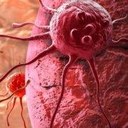 Το Κόκκινο Κρέας Συνδέεται Με Τον Καρκίνο Του Παχέος Εντέρου