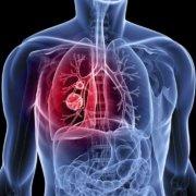 Η φυτική διατροφή ασπίδα για την καρδιακή ανεπάρκεια